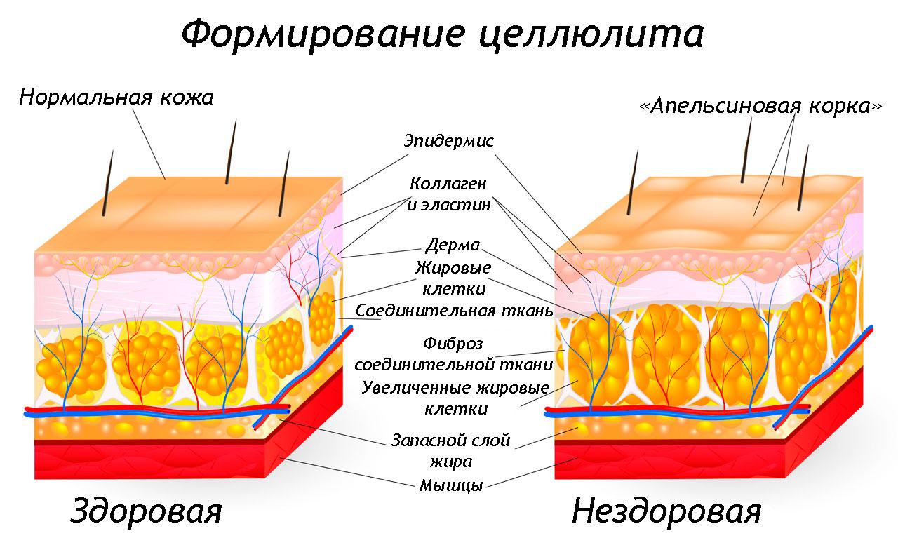 Что такое целлюлит и как он образуется