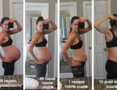 Как быстро и эффективно избавиться от диастаза после родов